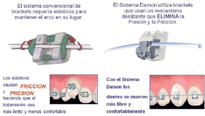 Sistema de control de–301061